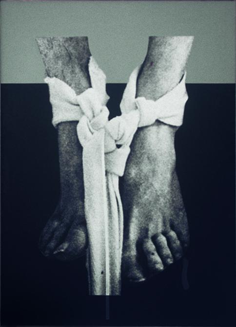 Darío Villalba, Pies vendados, 1974. (Colección Josep Suñol). Imagen cortesía de la Fundación Suñol.